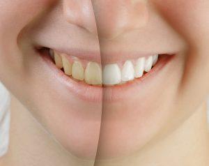 Teeth Whitening Charlottesville